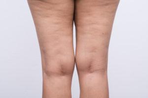 Целлюлит на ногах: фото